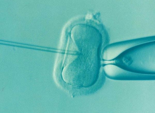 egg-freezing-ivf-under-microscope