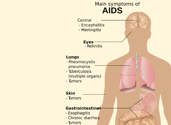 main-symptoms-of-hiv-aids