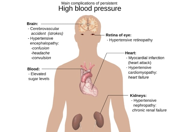 main-complications-of-high-blood-pressure