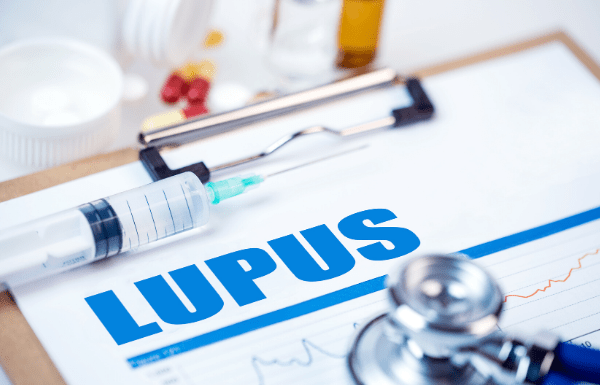 Lupus on doctor's hospital chart