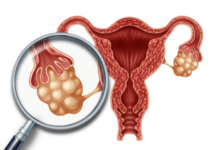 Magnified image of uterus with ovary and egg follicles