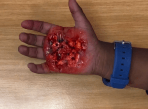 Third-degree burn on palm of hand