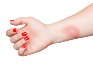 First-degree burn on woman's inner arm