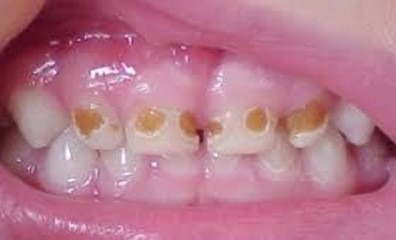 bottle rot and tooth decay in babies: brown lesions