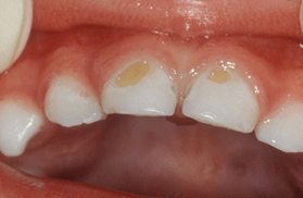 bottle rot: mild tooth decay in a baby who falls asleep drinking from a bottle