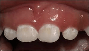 bottle rot and tooth decay in babies: white lesions