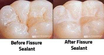 dental sealant over a tooth fissure