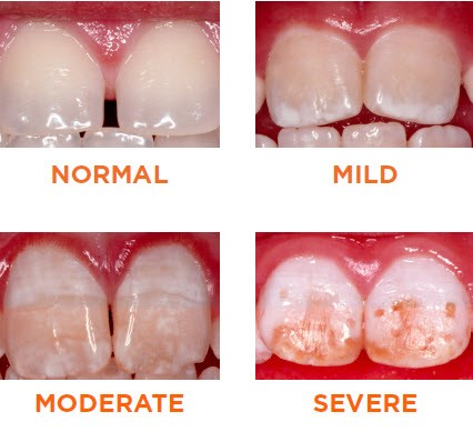 tooth stains in children from excess fluoride