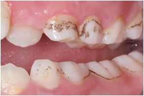 tooth stains in children: idiopathic black stains