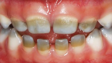 tooth stains in children: stains caused by illness