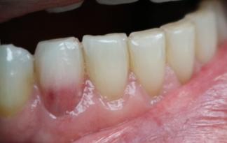 tooth stains in children: internal resorption stain