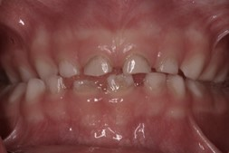 tooth stains in children: stains caused by medication