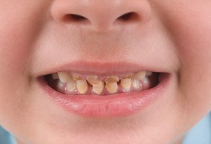 tooth stains in children: stains from not brushing properly