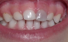 tooth stains in children: grey tooth caused by injury
