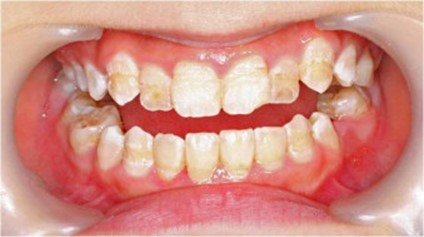 tooth stains in children: stains caused by weak enamel