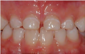 tooth stains in children: demineralisation tooth decay
