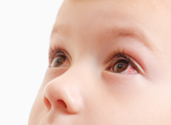 child with red itchy eyes: eye allergies in children symptoms and treatment